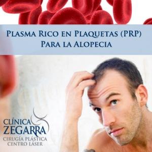 PlasmaRicoPlaquerasCalvicieClinicaZegarra